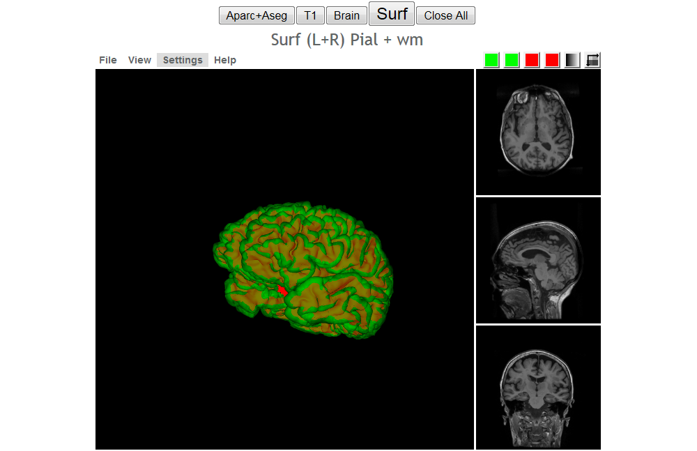 JMI-A Neuroimaging Web Services Interface as a Cyber Physical System ...