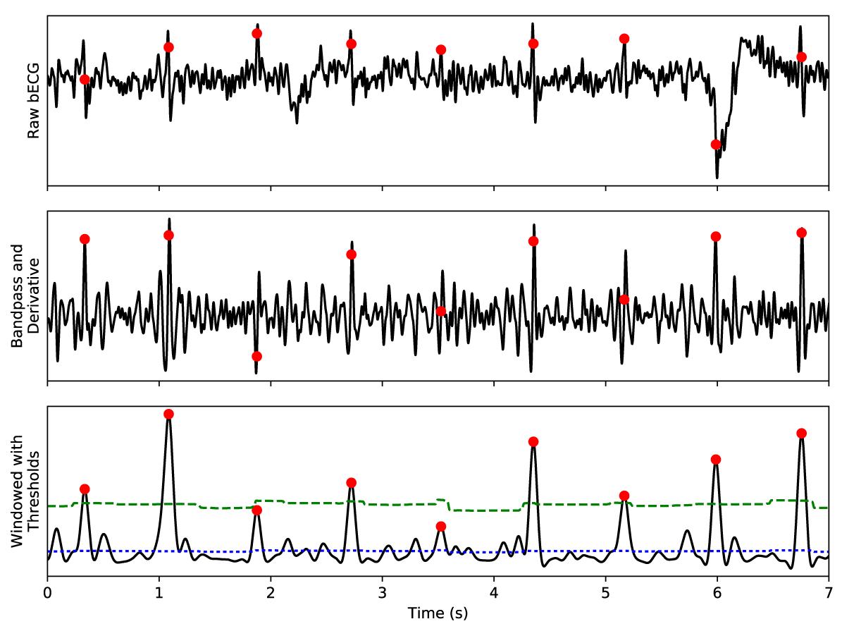 Jmu Nontraditional Electrocardiogram And Algorithms For Multiple Feedback Bandpass Filter Figure 3