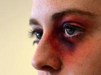 Source: Royal Air Force Lakenheath (Erin O'Shea); Copyright: US Air Force; URL: https://www.lakenheath.af.mil/News/Article-Display/Article/727608/domestic-violence-awareness-are-you-okay/; License: Public Domain (CC0).