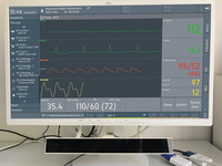 Anesthesia dashboard. Source: Image created by the Authors; Copyright: The Authors; URL: https://humanfactors.jmir.org/2019/2/e12553; License: Creative Commons Attribution (CC-BY).