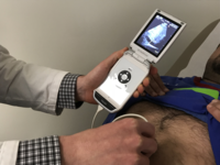 Handheld ultrasound. Source: Figure 1 from https://cardio.jmir.org/2018/1/e7; Copyright: the authors; License: Creative Commons Attribution (CC-BY).