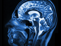 Source: Adobe Stock; Copyright: Maxim Pavlov; URL: https://stock.adobe.com/images/magnetic-resonance-imaging-of-the-brain/124504092; License: Licensed by the authors.