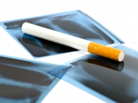 Source: FreeDigitalPhotos.net; Copyright: Theeradech Sanin; URL: http://www.freedigitalphotos.net/images/Smoking_g375-Film_Xray_And_Cigarette_p78202.html; License: Licensed by the authors.